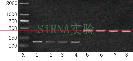 RNAi基因干扰
